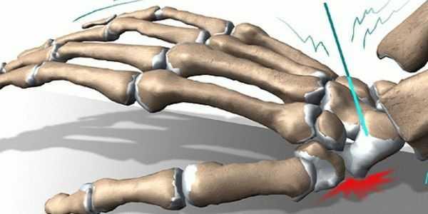 Реабилитация после перелома лучевой кости руки в домашних условиях