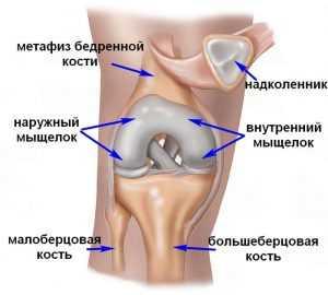 Импрессионный перелом мыщелка большеберцовой кости