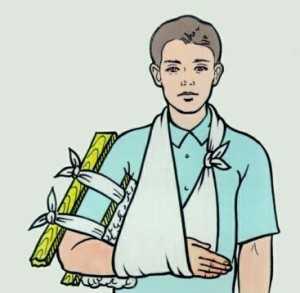 Как правильно оказать помощь пострадавшему с переломом плечевой кости