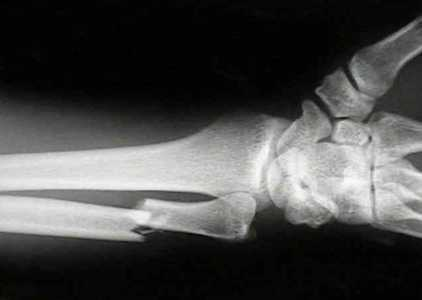 Как выглядит на рентгене сросшийся перелом