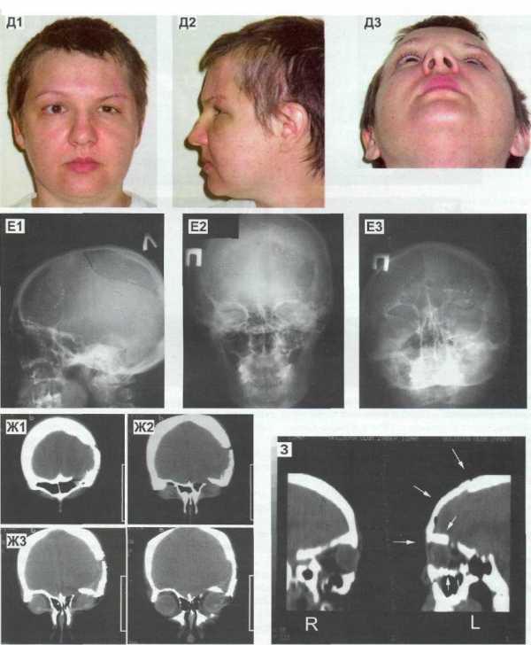 Можно ли греть ушиб что рекомендуют врачи