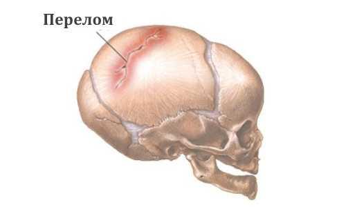 Как проявляется перелом черепа у грудного ребенка и чем лечить