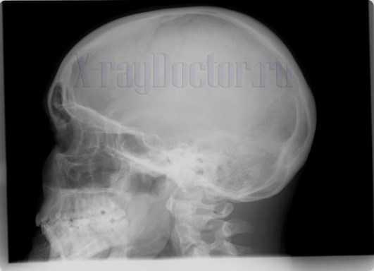 Рентген носа при переломе